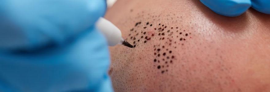 Maquillage permanent et tricopigmentation à Paris