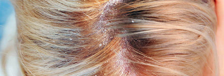 Guérir le psoriasis du cuir chevelu